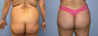 Brazilian Butt Lift (Fat Transfer) before 256423