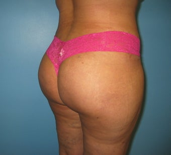 Buttock augmentation (Brazilian buttock lift) after 312657