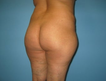 Buttock augmentation (Brazilian buttock lift) before 312657