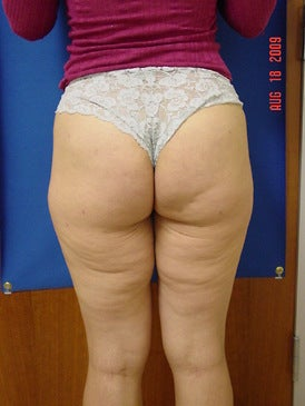 Brazilian Butt Lift/Liposuction before 393405