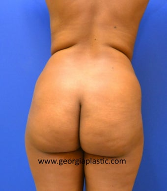 Brazilian Buttock Lift before 440716