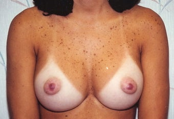 Breast Augmentation after 266781