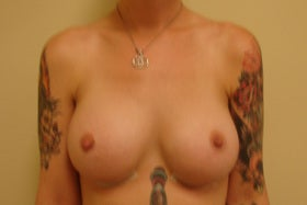 Breast Augmentation after 281910