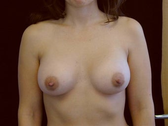Breast augmentation after 293907