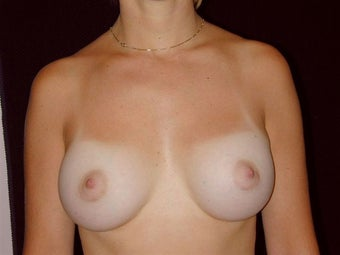 Breast augmentation after 293944