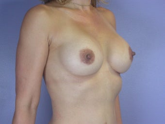 Breast Implants after 304989