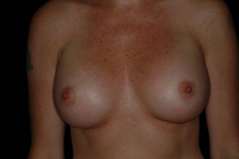 Breast Augmentation after 336384