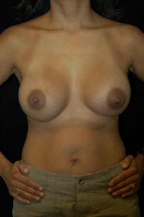 Breast Augmentation after 391967