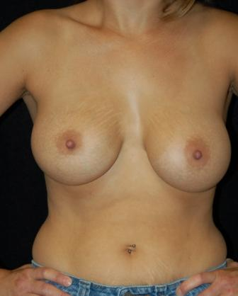 Breast Augmentation, gel implants after 392059