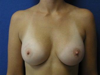 Guys love 34c breast pictures rockin