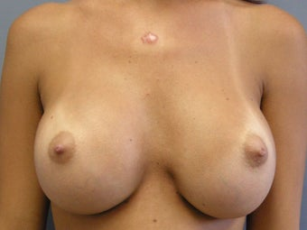 Breast Augmentation after 510237