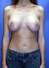 Breast Augmentation after 96871