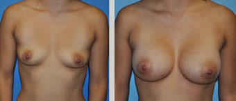 Flash Recovery Breast Augmentation TM before 253882