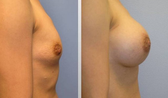 Breast Augmentation  before 256396