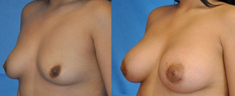 Flash Recovery Breast Augmentation (TM) before 256398