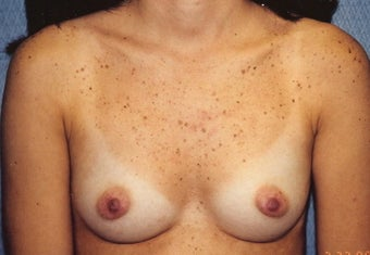 Breast Augmentation before 266781