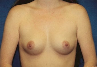 Breast Augmentation before 266782