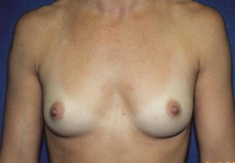 Breast Augmentation before 266795