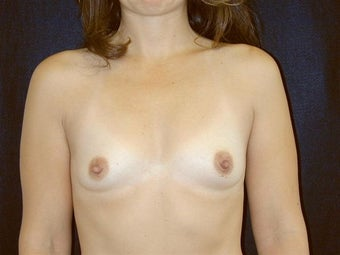 Breast augmentation before 293907