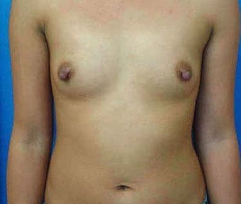 Breast Augmentation  before 317789