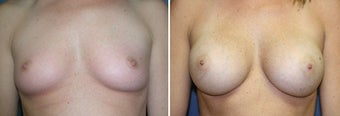 Breast Augmentation before 328463
