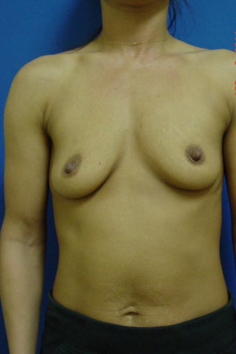 Breast Augmentation before 338418