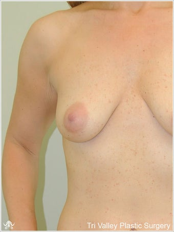 Breast Augmentation before 420891