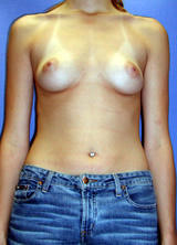 Breast Augmentation before 96871