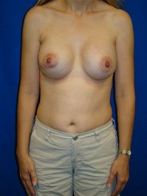 Revisionary Breast Surgery after 118358