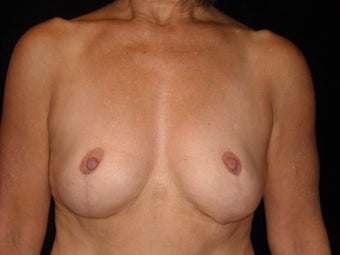 58 year old lady wanted implant removal and a breast lift