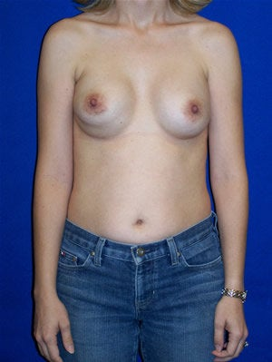 Revisionary Breast Surgery before 118358