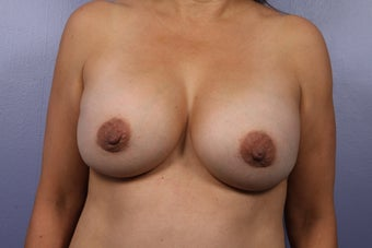 Breast Implants after 302547