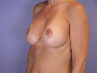 Breast Revision Surgery  after 306991