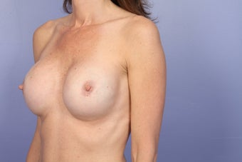 Breast Revision after 307225