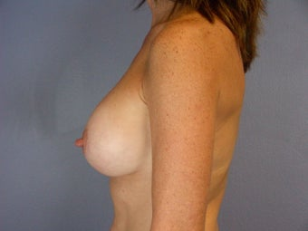 Breast Revision after 307233