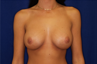 Breast Implant Revision after 335785