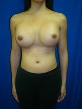 Revision Breast Surgery after 356593