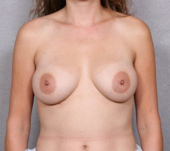 Breast Implant Revision after 463936