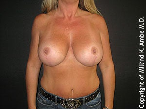 Breast Lift after 595898