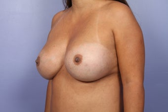 Breast Implant Revision after 622843