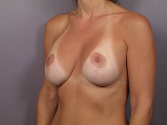 Breast Revision Surgery  before 306991