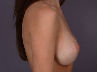 Breast Revision before 307222