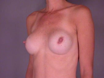 Breast Revision before 307225