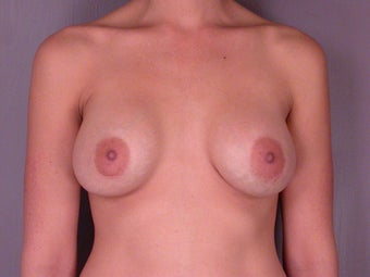Breast Implant Revision before 307418