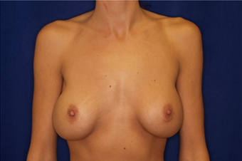 Breast Implant Revision before 335785