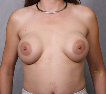 Breast Implant Revision before 463936