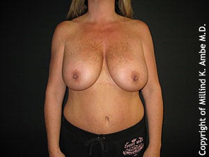 Breast Lift before 595898
