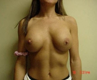 Breast implants after 171631