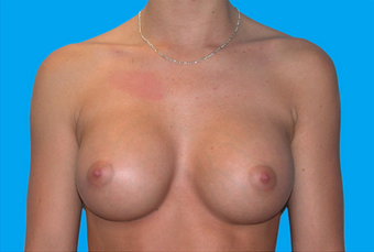 Breast Augmentation after 335916