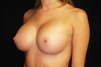 Breast Augmentation after 335970